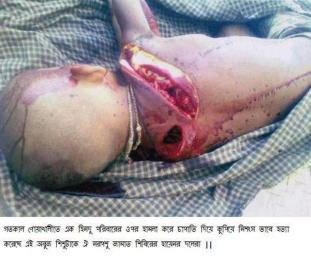 jammati-islamic-beasts-chopped-to-kill-this-innocent-hindu-child-in-bangladesh